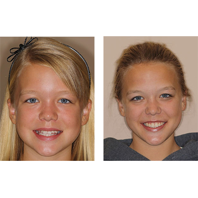 before and after braces girl one